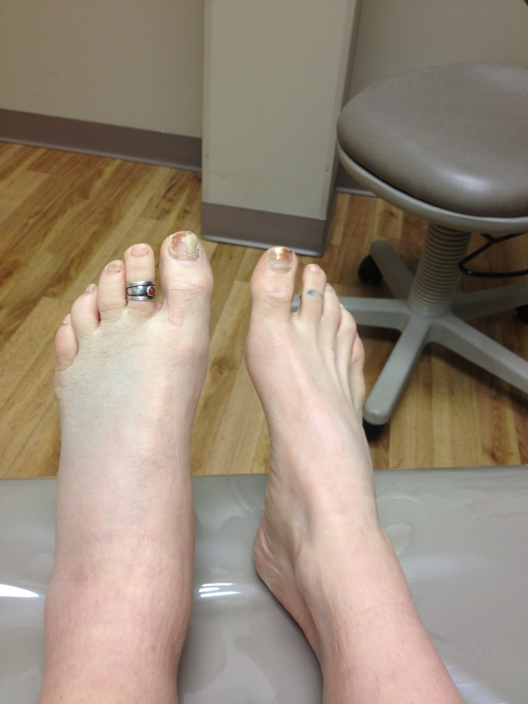 Talus foot. Fracture of the talus of the foot: consequences 95