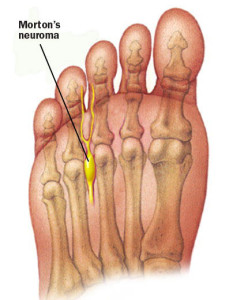Image taken from: http://www.performpodiatry.co.nz/painful-forefoot-mortons-neuroma-causes-treatment-and-prevention/